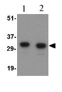 Western blot - NIPSNAP1 antibody (ab67324)