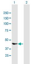 Western blot - Deptor antibody (ab67774)
