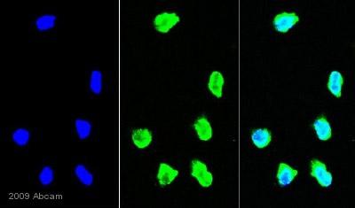 Immunocytochemistry/ Immunofluorescence - STOM antibody (ab67880)