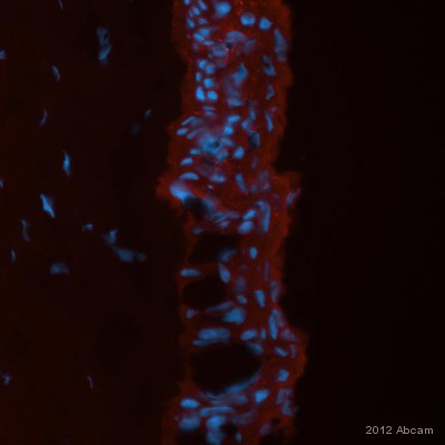 Immunocytochemistry/ Immunofluorescence - Anti-Cytokeratin 3+12 antibody [2Q1040] (ab68260)