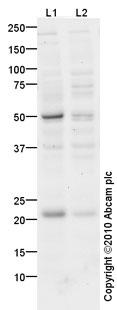 Western blot - IL18 antibody (ab68435)