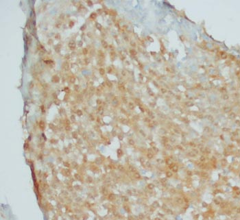 Immunohistochemistry (Formalin/PFA-fixed paraffin-embedded sections) - SCYL1BP1 antibody (ab68452)