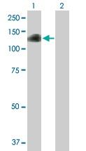 Western blot - Anti-DZIP1 antibody (ab68568)