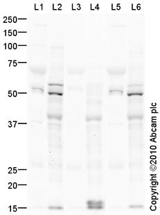 Western blot - SOX9 (phospho S181) antibody (ab68610)