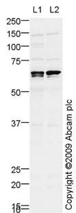 Western blot - ACVRL1 antibody (ab68703)