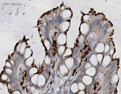 Immunohistochemistry (Formalin/PFA-fixed paraffin-embedded sections) - KIAA1576 antibody (ab68926)