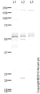 Western blot - Inhibin beta B antibody (ab69286)