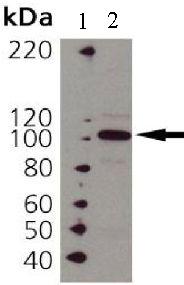 Western blot - Hsp104 antibody (ab69549)