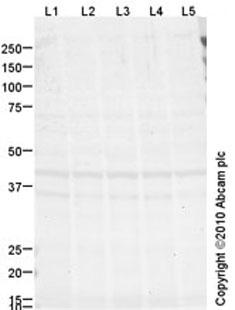 Western blot - Crk p38 antibody [mAbcam69723] (ab69723)