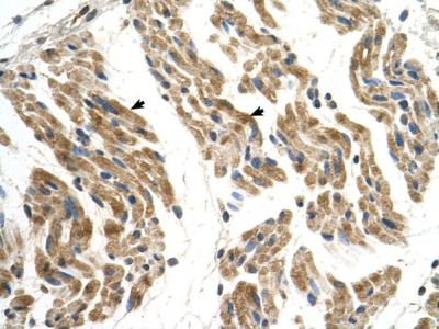 Immunohistochemistry (Formalin/PFA-fixed paraffin-embedded sections) - Anti-SLC35F2 antibody (ab69820)