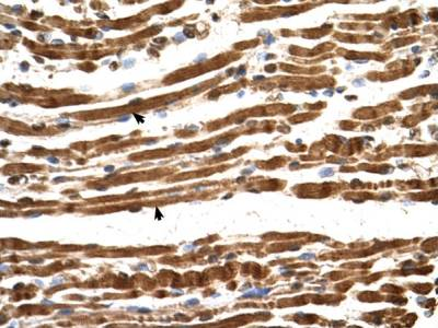 Immunohistochemistry (Formalin/PFA-fixed paraffin-embedded sections) - Anti-NARG1L antibody (ab69845)