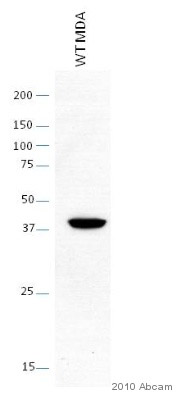 Western blot - ST6GALNAC5 antibody (ab69855)