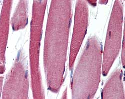 Immunohistochemistry (Formalin/PFA-fixed paraffin-embedded sections) - PAX3 antibody [C2] (ab69856)