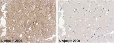 Immunohistochemistry (Formalin/PFA-fixed paraffin-embedded sections) - alpha Internexin antibody (ab7259)