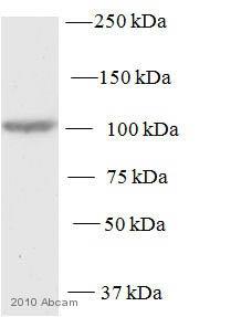 Western blot - Protein Kinase D2 antibody (ab7281)