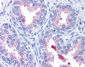 Immunohistochemistry (Formalin/PFA-fixed paraffin-embedded sections) - ABCA1 antibody (ab7360)