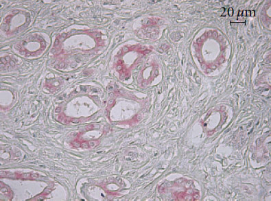 Immunohistochemistry (Formalin/PFA-fixed paraffin-embedded sections) - Anti-IL1 alpha antibody (ab7632)