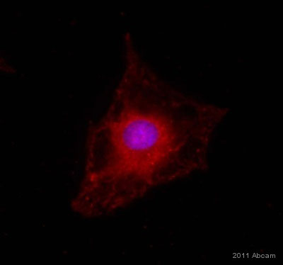 Immunocytochemistry/ Immunofluorescence - Anti-Slit2 antibody (ab7665)