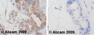 Immunohistochemistry (Formalin/PFA-fixed paraffin-embedded sections) - alpha Tubulin antibody [TU-16] (ab7749)