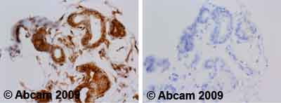 Immunohistochemistry (Formalin/PFA-fixed paraffin-embedded sections)-alpha Tubulin antibody [TU-01](ab7750)