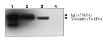 Western blot - Vimentin antibody [VI-01] (ab7752)