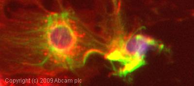 Immunocytochemistry/ Immunofluorescence-Cytokeratin 19 antibody [BA-17](ab7755)