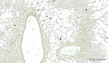 Immunohistochemistry (Formalin/PFA-fixed paraffin-embedded sections) - RAGE antibody (ab7764)