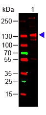 Western blot - Anti-Collagen III antibody (ab7778)