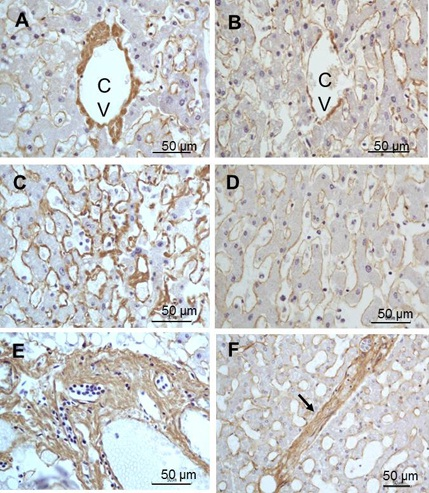 Immunohistochemistry (Formalin/PFA-fixed paraffin-embedded sections) - Anti-Collagen III antibody (ab7778)