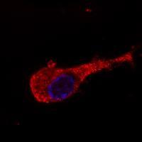 Immunocytochemistry/ Immunofluorescence - 160 kD Neurofilament Medium antibody [NF-09] - Neuronal Marker (ab7794)