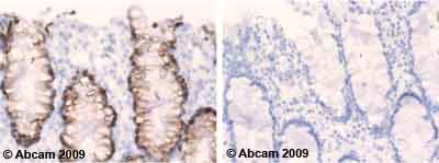 Immunohistochemistry (Formalin/PFA-fixed paraffin-embedded sections) - MUC2 antibody [B306.1] (ab7848)