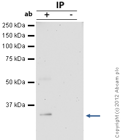 Immunoprecipitation - Anti-Cdk2 antibody (ab7954)