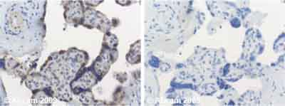 Immunohistochemistry (Formalin/PFA-fixed paraffin-embedded sections) - Cdk4 antibody (ab7955)
