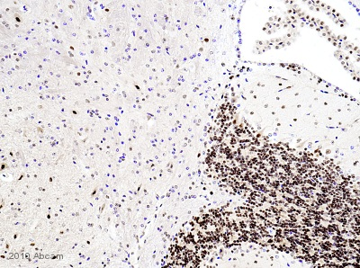 Immunohistochemistry (Formalin/PFA-fixed paraffin-embedded sections) - p27 KIP 1 antibody (ab7961)