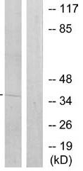 Western blot - Anti-TATA binding protein TBP antibody (ab70009)