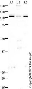Western blot - Lipin 1 antibody (ab70138)