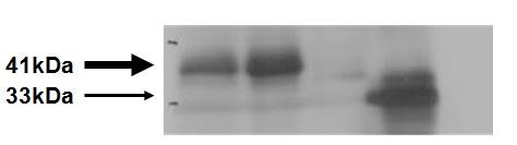 Western blot - Anti-HLA Class 1 ABC antibody [EMR8-5] (ab70328)