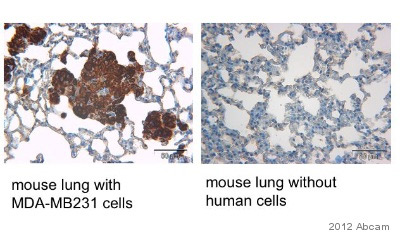 Immunohistochemistry (Formalin/PFA-fixed paraffin-embedded sections) - Anti-HLA Class 1 ABC antibody [EMR8-5] (ab70328)