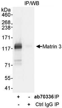 Immunoprecipitation - Anti-Matrin 3 antibody (ab70336)