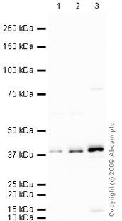 Western blot - Adiponectin Receptor 1 antibody (ab70362)