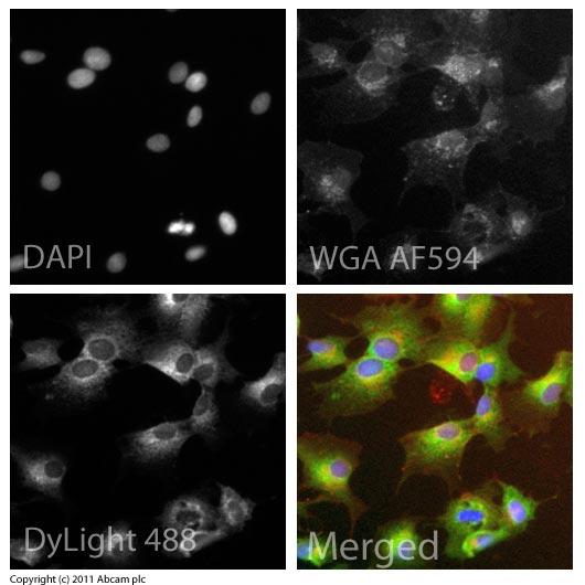 Immunocytochemistry/ Immunofluorescence - Anti-Adiponectin Receptor 1 antibody (ab70362)