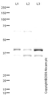 Western blot - Connexin 45 / GJA7 antibody (ab70365)