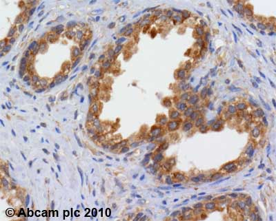 Immunohistochemistry (Formalin/PFA-fixed paraffin-embedded sections)-RICTOR antibody(ab70374)