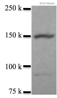 Western blot - Anti-DRIP130 antibody (ab70450)