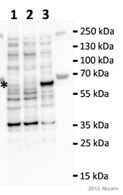 Western blot - Anti-P4HA2 antibody (ab70887)
