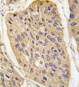 Immunohistochemistry (Formalin/PFA-fixed paraffin-embedded sections)-WIF1 antibody - N-terminal(ab71204)