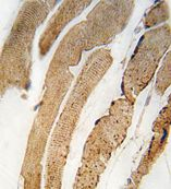 Immunohistochemistry (Formalin/PFA-fixed paraffin-embedded sections) - PDK4 antibody (ab71240)