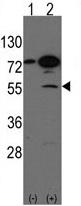 Western blot - ARHGEF9 antibody - C-terminal (ab71350)
