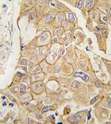 Immunohistochemistry (Formalin/PFA-fixed paraffin-embedded sections)-ADCY2 antibody - Carboxyterminal end(ab71462)