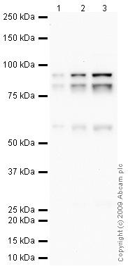 Western blot - C1r antibody (ab71652)